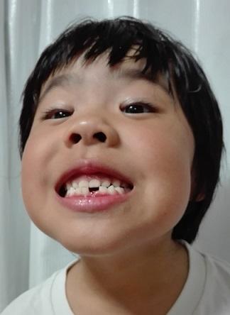170827 歯が抜けた妹新参 (4)